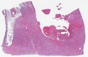 Pleomarphic epidermoid carcinoma, renal pelvis (Right kidney) [1470/6]