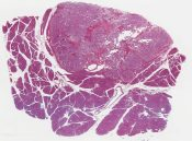 Islet cell tumor (beta cell type) (Pancreas) [1471/12]