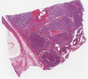 Granulosa, Theca tumor (Adrenal gland) [1471/18]