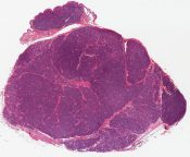 Dermal eccrine cylindroma (Skin from anterior chest) [1472/8]