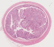 Adenoma, papillary (villous), appendix (Appendix) [1474/18]