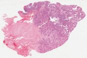 Carcinoma of anus, basaloid (Anorectal wall) [1474/24]