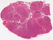 Oncocytoma, parotid gland (Left parotid gland) [1476/1]