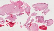 Rhabdomyosarcoma, nasal cavity (Nasal cavity) [1476/17]