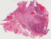 Malignant melanoma, maxillary sinus (Right maxillary sinus) [1476/19]