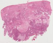 Carcinoma ex-pleomorphic adenoma, minor salivary gland, pharynx (Left lateral pharyngeal wall) [1476/23]