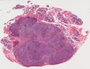 poorly differentiated carcinoma, parotid gland, consistent with origin in lymphoepithelial lesion; rule out metastatic from occult head and neck primary (Left parotid gland) [1476/3]
