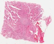 Multifocal papillary adenocarcinoma (sclerosing, occult carcinoma) (Thyroid gland) [1477/17]