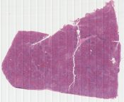 Hairy cell leukemia, spleen (Spleen) [1478/10]