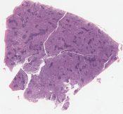 Malignant lymphoma, immunoblastic sarcoma, probably B cell, axillary lymph node (Left axillary lymph node) [1478/9]