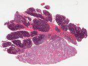 Mucoepidermoid carcinoma, parotid (medium grade) (Left parotid) [1479/11]