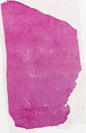 Myosarcoma (Liver) [1481/1]