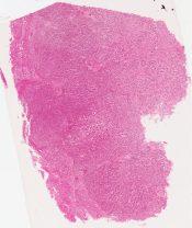 Cholangiolocellular carcinoma (Liver) [1481/3]
