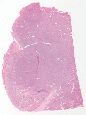 Liver cell adenoma (Liver) [1481/6]