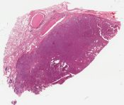 Spindle cell carcinoid (Lung) [1486/1]