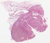 Metastatic melanoma () [1486/12]