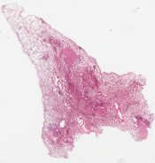 Localized pulmonary histiocytosis X (Lung) [1486/22]