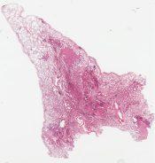Localized pulmonary histiocytosis X (Lung) [1486/22]