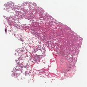 Bronchioalveolar cell carcinoma with surfactant production () [1486/8]