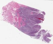 Small cell undifferentiated carcinoma (SCUC) of the urinary bladder (urinary bladder) [1487/1]