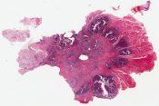 Intestinal-type adenocarcinoma of the sinonasal region (nasal cavity) [1487/11]
