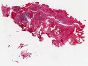 Embryonal rhabdomyosarcoma (unknown) [1487/13]