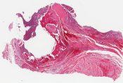 Aneurysmal bone cyst (bone) [1487/7]