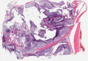Chordoma (Bone) [1488/14]