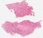 Fibrous dysplasia (Bone) [1488/18]