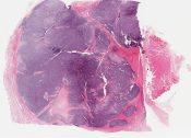 Mesenchymal Chondroblastoma (Bone) [1488/4]