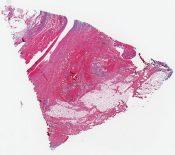 Choriocarcinomatous teratoma, mediastinum (Anterior mediastinum) [1489/15]