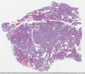 Papillary hepatoblastoma (Liver) [1489/21]
