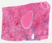 Lymphangioma (Spleen) [1493/7]