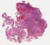 Adenosarcoma (Bladder tumor) [1494/23]