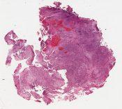 Adenosarcoma (Bladder tumor) [1494/23]