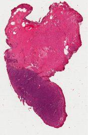 Paraganglioma (Bladder tumor) [1494/25]