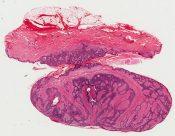 Fibro-epithelioma (of Pinkus) (Right flank) [1495/2]