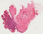 Pigmented nevus (Pigmented lesion on breast) [1495/23]