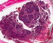 Parosteal osteosarcoma (Bone) [158/6]