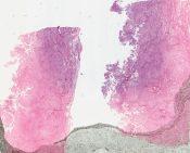 Mesothelioma (Peritoneum) [170/16]