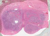 Hepatocellular carcinoma (liver cell carcinoma; hepatoma) (Liver) [170/2]