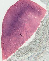 Adrenogenital syndrome (Ovary) [173/5]
