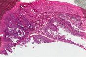 Leiomyoblastoma (Small bowel ) [178/2]