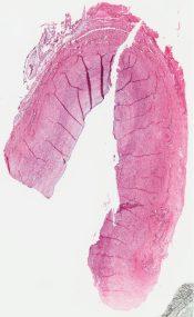 Neuroblastoma (cystic) (Adrenal) [18/1]