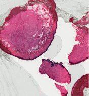 Fibromatosis (Soft tissues) [18/16]