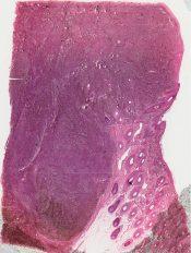 Malignant melanoma (Skin) [18/18]