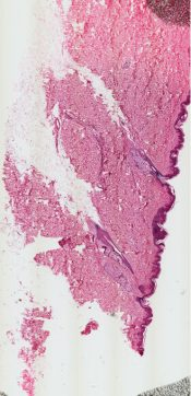 Pigmented nevus (Skin) [18/21]