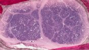 Neuroblastoma (Adrenal - peritoneum - soft tissues) [180/16]
