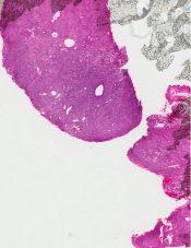Malignant lymphoma (Nasal cavity - nasopharynx) [189/5]