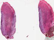 Glioma (Nasal cavity - eye) [19/7]